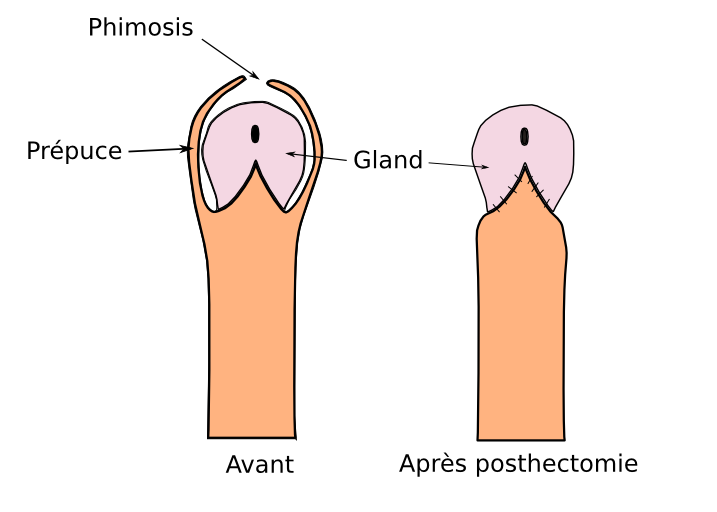 posthectomie